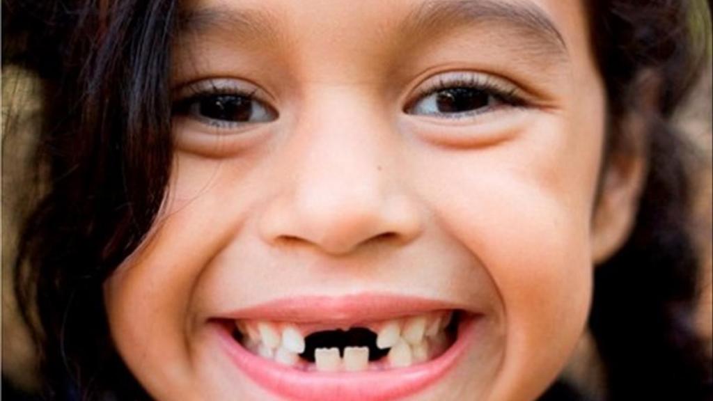 Nằm mơ thấy gãy răng đánh đề con gì? Giải mã giấc mơ gãy răng